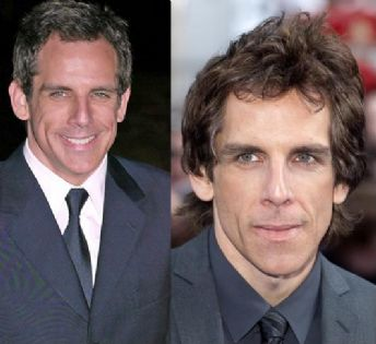 Did Ben Stiller Have Plastic Surgery?